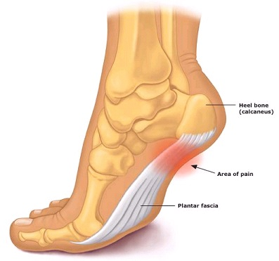 Try Massage for Plantar Fasciitis Treatment